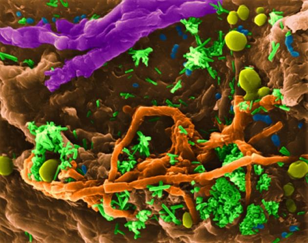 Superficie di una spugnetta usata vista al microscopio, popolata da funghi e batteri
