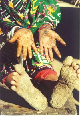 Alcuni dei danni causati dall'Arsenico